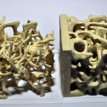 Qu'est-ce que l'ostéoporose ?